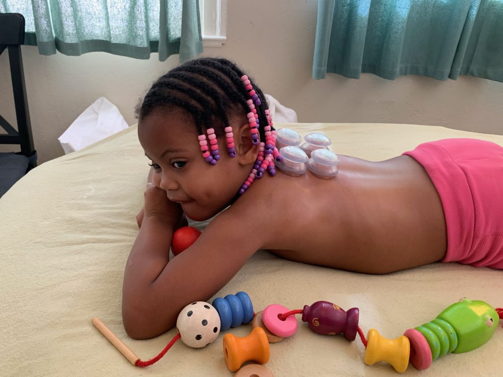 Girl beads in her hair with acupuncture cups on back.
